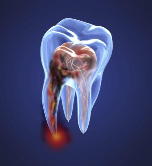 root canal treatment preston